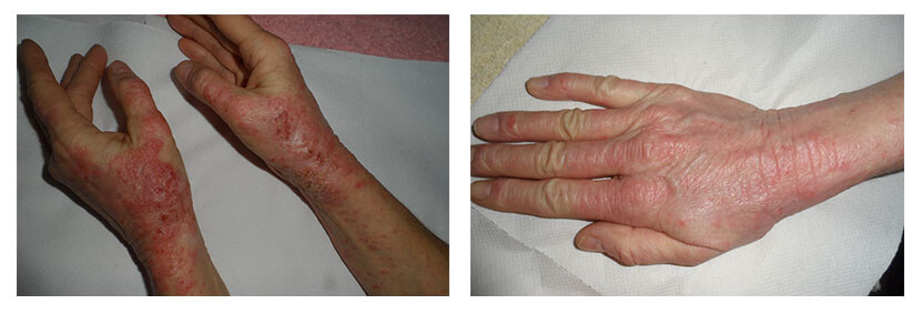 treatment of eczema with plason