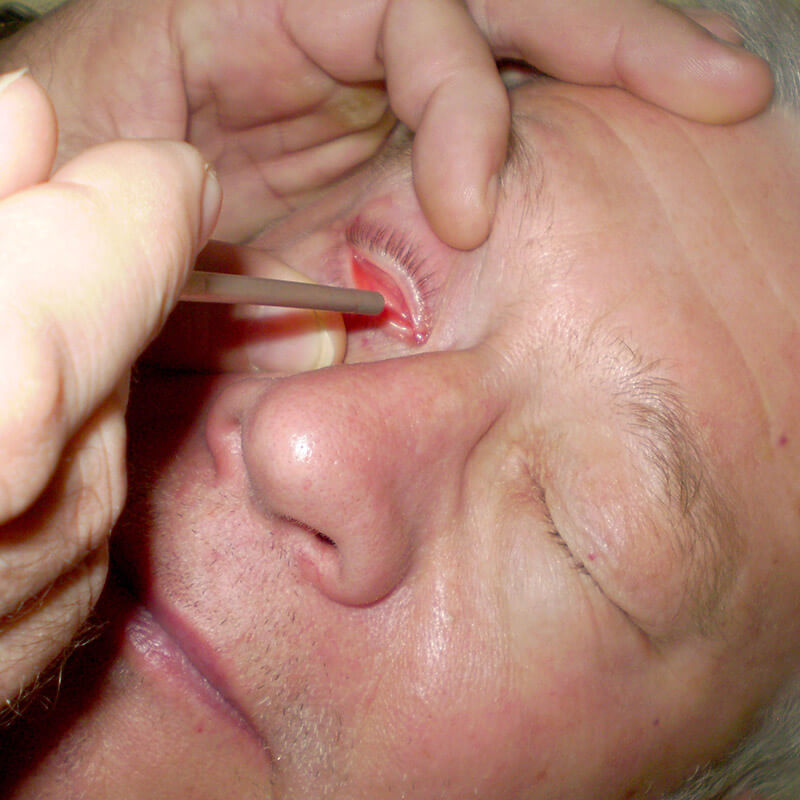 Herpes keratitis terapia, therapy