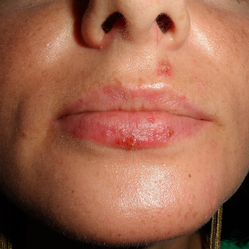 Herpes simplex HSV-1 terapia therapy
