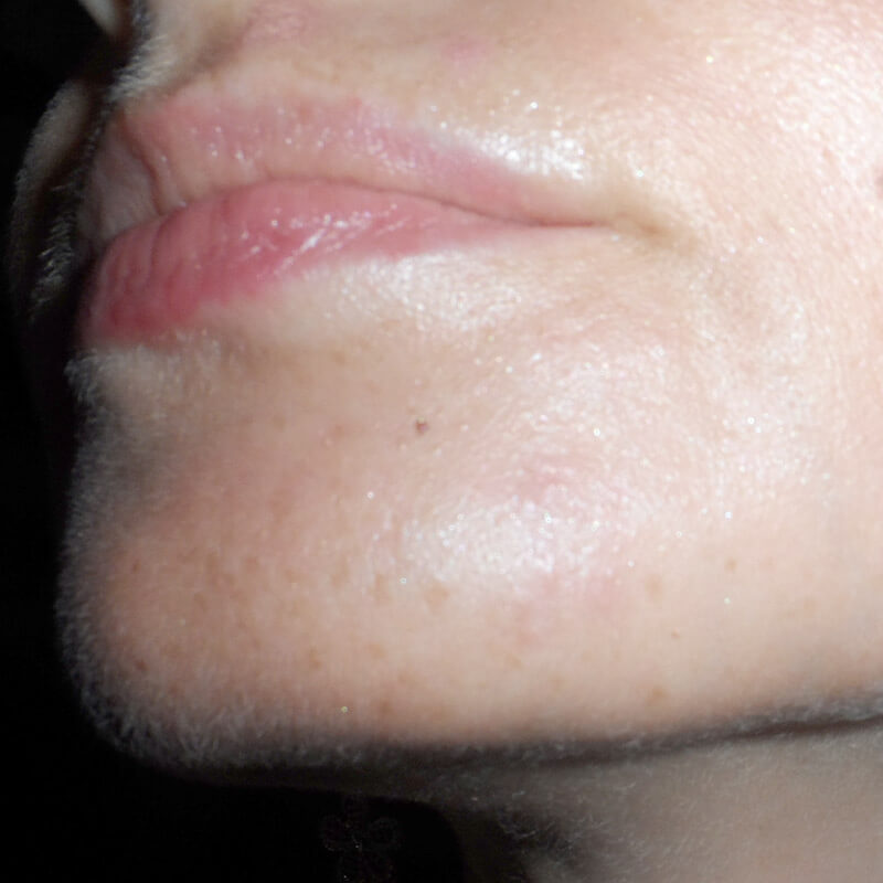 Herpes simplex HSV-1 terapia, therapy