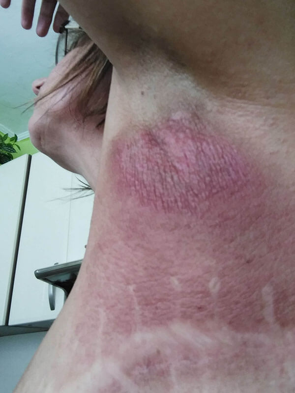 Postradiačná dermatitída, stav po 10 aplikáciách oxidu dusnatého prístrojom PLASON - Post-radiation dermatitis - condition after 10 sessions of nitric oxide application by PLASON device