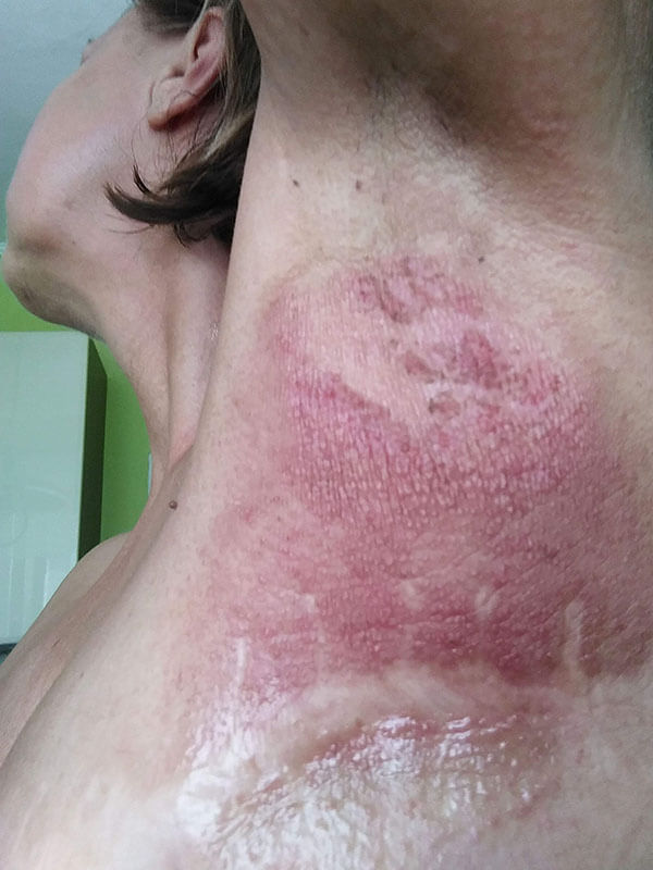 Postradiačná dermatitída, stav po 30 aplikáciách oxidu dusnatého prístrojom PLASON - Post-radiation dermatitis - condition after 15 sessions of nitric oxide application by PLASON device