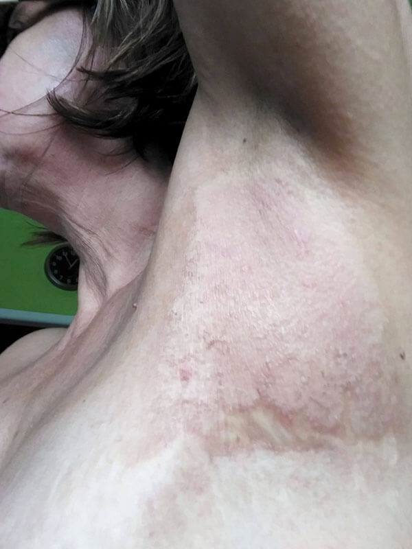 Postradiačná dermatitída, stav po 40 aplikáciách oxidu dusnatého prístrojom PLASON - Post-radiation dermatitis - condition after 40 sessions of nitric oxide application by PLASON device