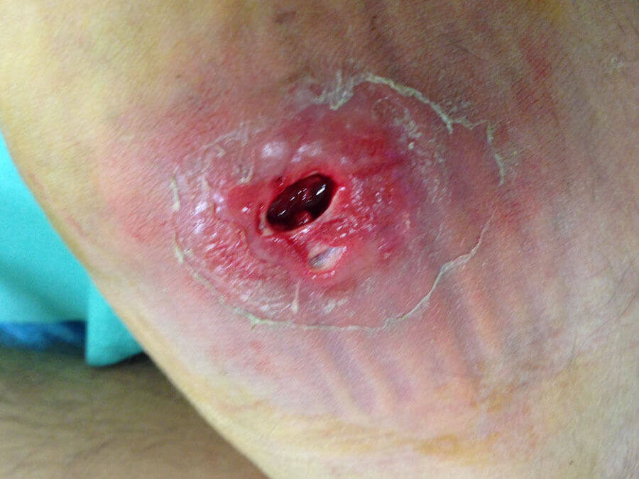 Absces: 3. deň zákroku chirurgie / Abscess: third day of surgery procedure - rubber tube in the wound to drain pus